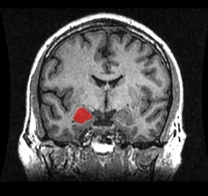 Someone's left amygdala is highlighted on this MRI. It's the source of hot impulsivity, damn the consequences.
