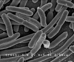 Bacteria...specifically Escherichia coli.