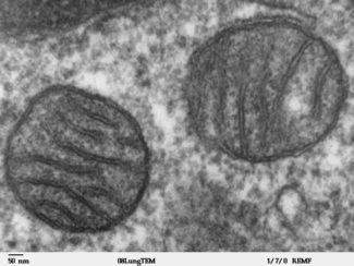 Mitochondria electron micrograph